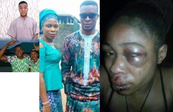 Man Inflicted Injuries on his wife for refusing to abort their 3-month-old pregnancy