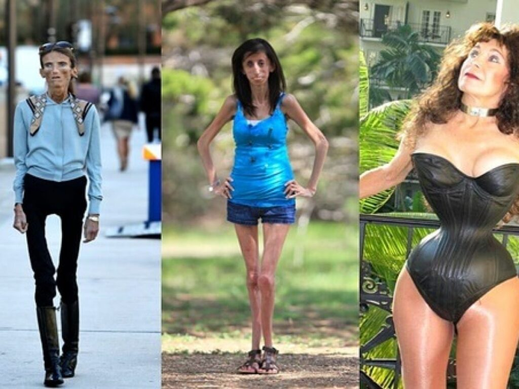 Skinniest persons in the world